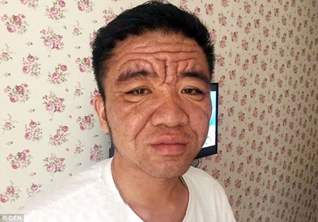 Yuan Taiping (above), from Chongqing, south west China, appears to have a face of an 80-year-old pensioner