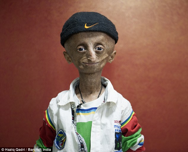 Nihal Bitla has the premature ageing condition progeria, a disease ages the body - but not the mind - at eight times the normal rate