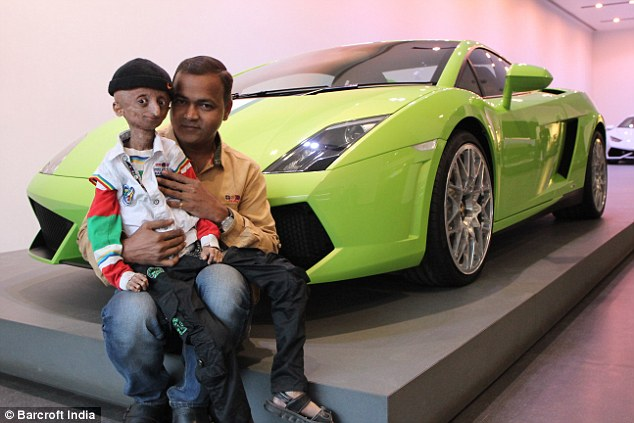Nihal, with his father Srinivas, posing beside a Lamborghini in Mumbai. Progeria is very rare, with between 200 to 250 children living with the syndrome at any given time